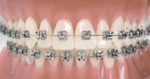 ortodonzia2